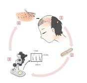 サミティヴェート病院自毛植毛プログラム